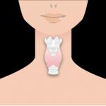 知らないだけでかかっている? 甲状腺の病気について分かりやすく解説します